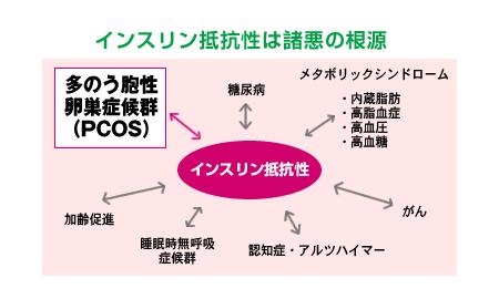 症候群 卵巣 嚢胞 多 性 多嚢胞卵巣症候群PCOS│多嚢胞卵巣症候群、PCOS、不妊治療、体質改善、原因、遺伝、やせ、肥満、インスリン抵抗性