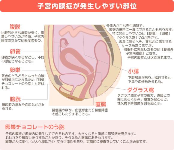 放置 膜 子宮 内 ポリープ