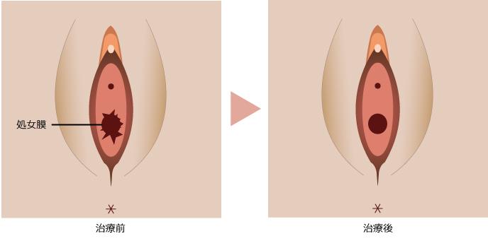 処女膜形成・再生術