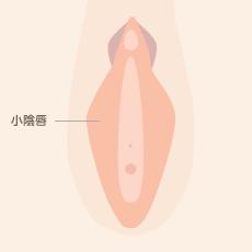 小陰唇縮小